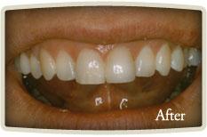 Dental Implants Etobicoke