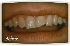 Dental Implants Bloor West Village