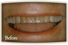 Dental Hygienists Bloor West Village