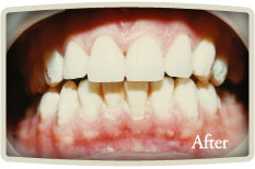 Cosmetic Dentistry High Park
