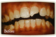 Smile Makeover Etobicoke