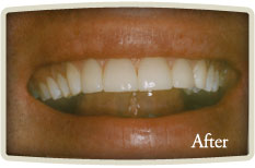 Teeth Whitening High Park