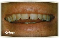 Teeth Whitening Bloor West Village