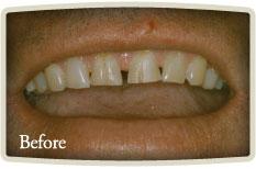 Dental Hygienists Etobicoke